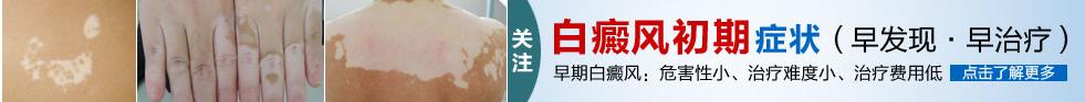 广西白癜风医院
